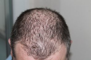 Which hair loss treatments can you trust?